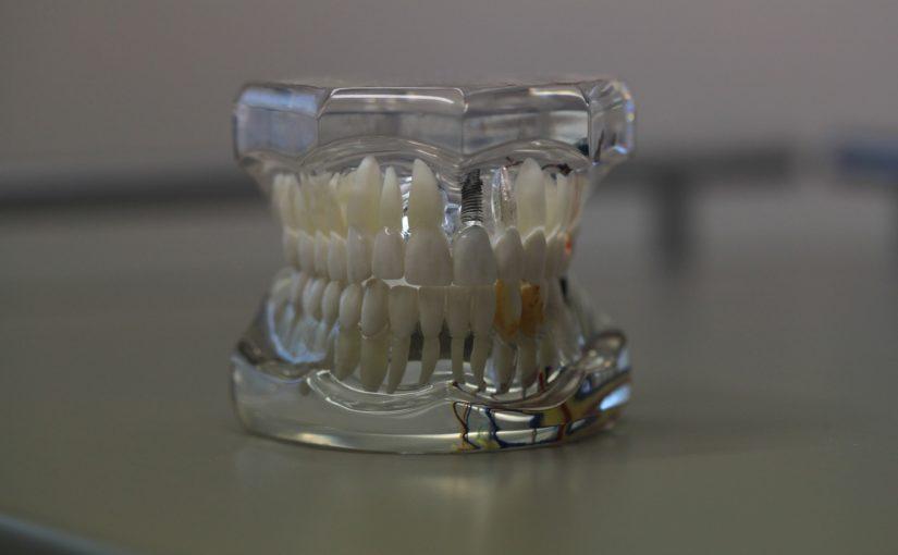 Zła sposób odżywiania się to większe niedostatki w jamie ustnej oraz również ich brak